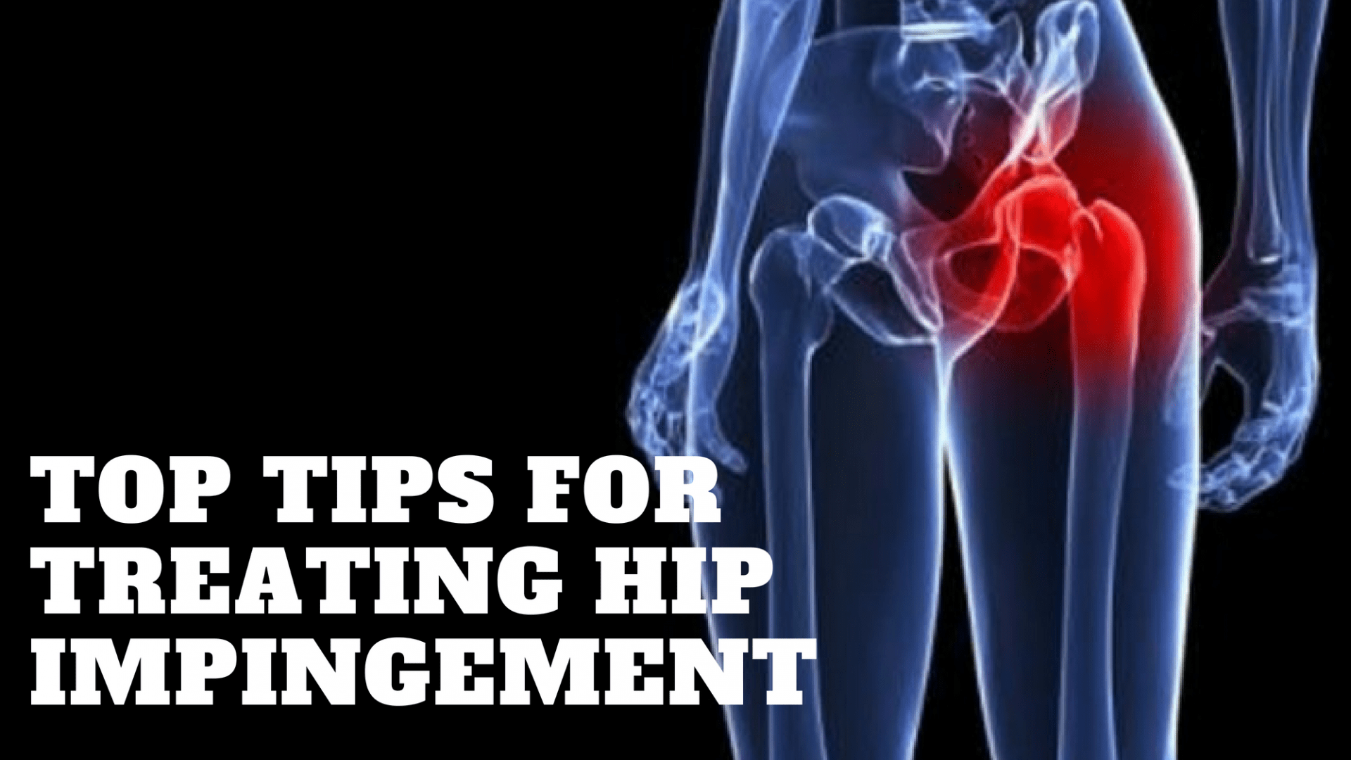 treating hip impingement